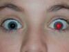 App per occhi rossi