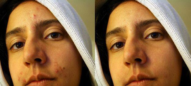 Eruzione di acne a bambini su una faccia circa un anno